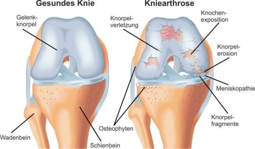 Arthritis Kniegelenk